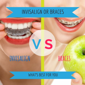 INVISALIGN-vs-BRACES.png