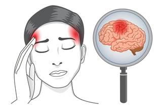 headacheg887500506_1388171.jpg